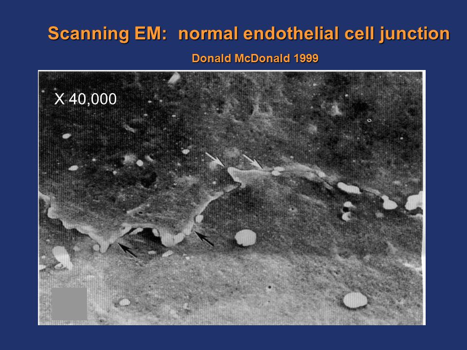 Scanning EM: normal endothelial cell junction Donald McDonald 1999 X 40,000