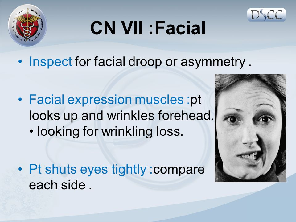 Inspect for facial droop or asymmetry. Facial expression muscles: pt looks up and wrinkles forehead. looking for wrinkling loss. Pt shuts eyes tightly