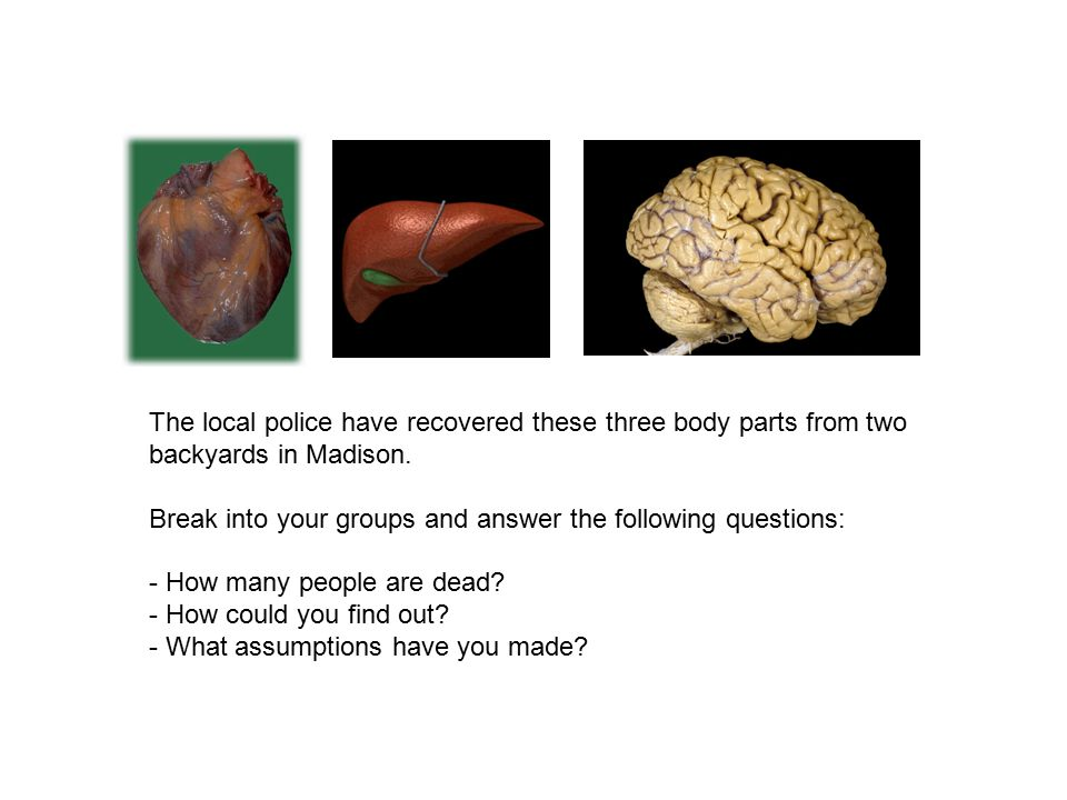 The local police have recovered these three body parts from two backyards in Madison.