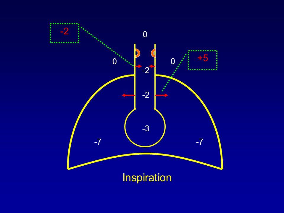 0 00 -7 -3 +5 -2 Inspiration