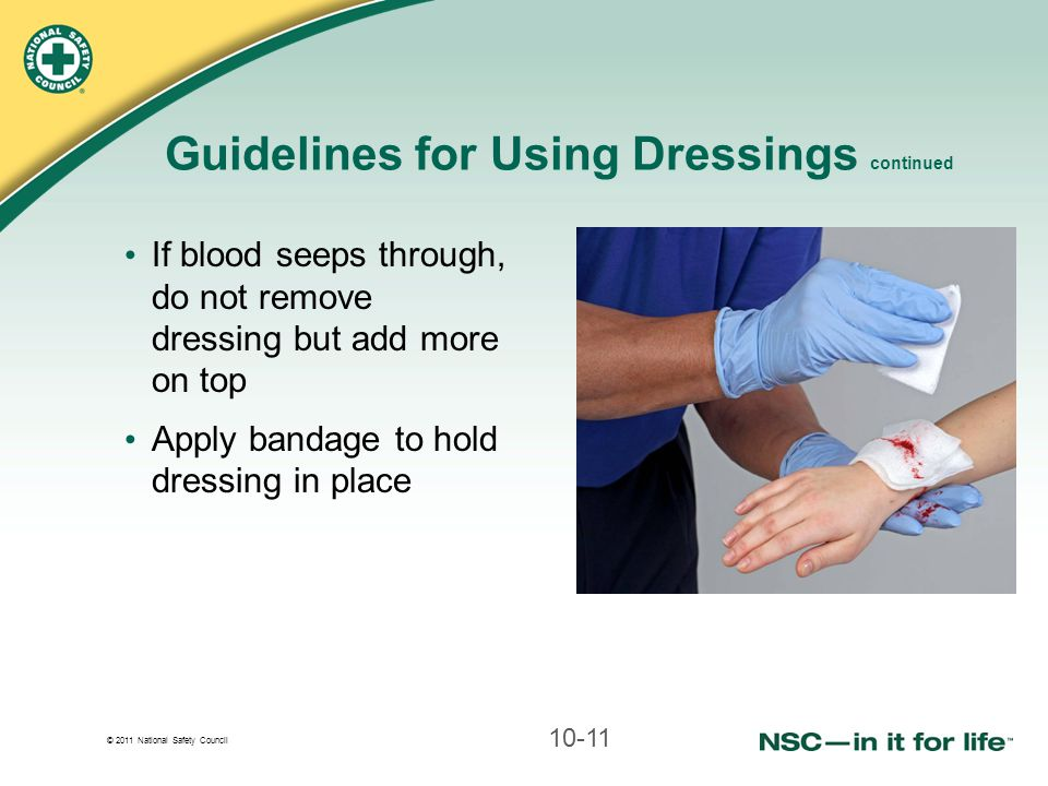 © 2011 National Safety Council Guidelines for Using Dressings continued If blood seeps through, do not remove dressing but add more on top Apply banda