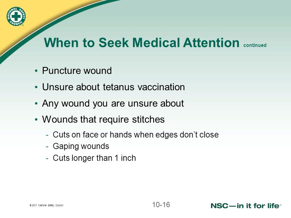 © 2011 National Safety Council When to Seek Medical Attention continued Puncture wound Unsure about tetanus vaccination Any wound you are unsure about