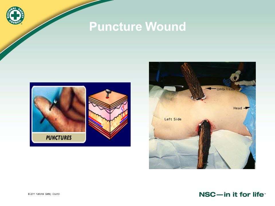 © 2011 National Safety Council Puncture Wound