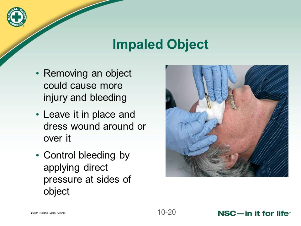 © 2011 National Safety Council Impaled Object Removing an object could cause more injury and bleeding Leave it in place and dress wound around or over