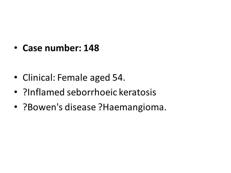 Case number: 148 Clinical: Female aged 54. ?Inflamed seborrhoeic keratosis ?Bowen's disease ?Haemangioma.