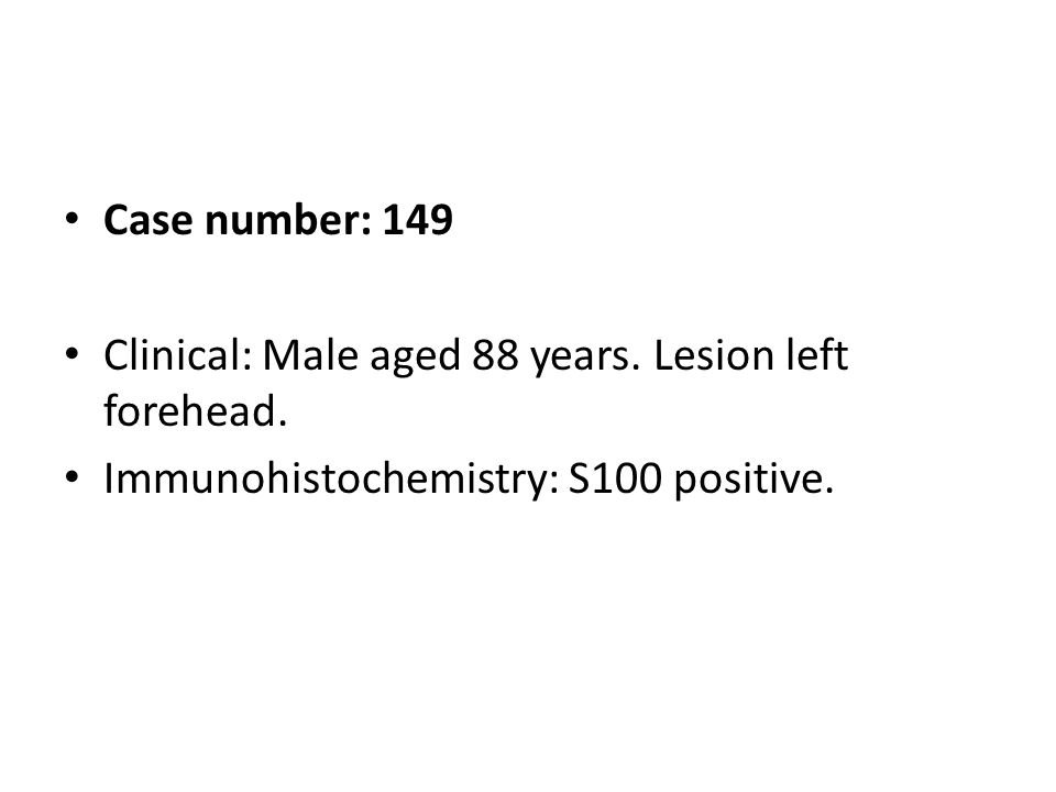 Case number: 149 Clinical: Male aged 88 years. Lesion left forehead. Immunohistochemistry: S100 positive.