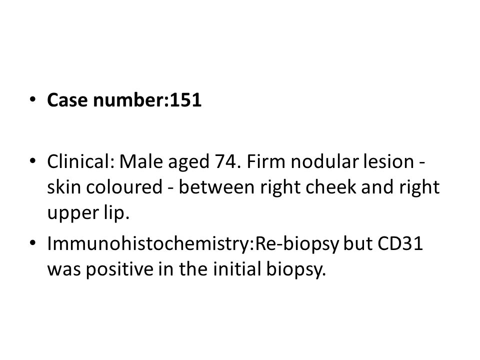 Case number:151 Clinical: Male aged 74. Firm nodular lesion - skin coloured - between right cheek and right upper lip. Immunohistochemistry:Re-biopsy