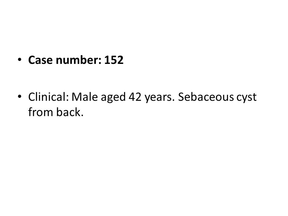 Case number: 152 Clinical: Male aged 42 years. Sebaceous cyst from back.