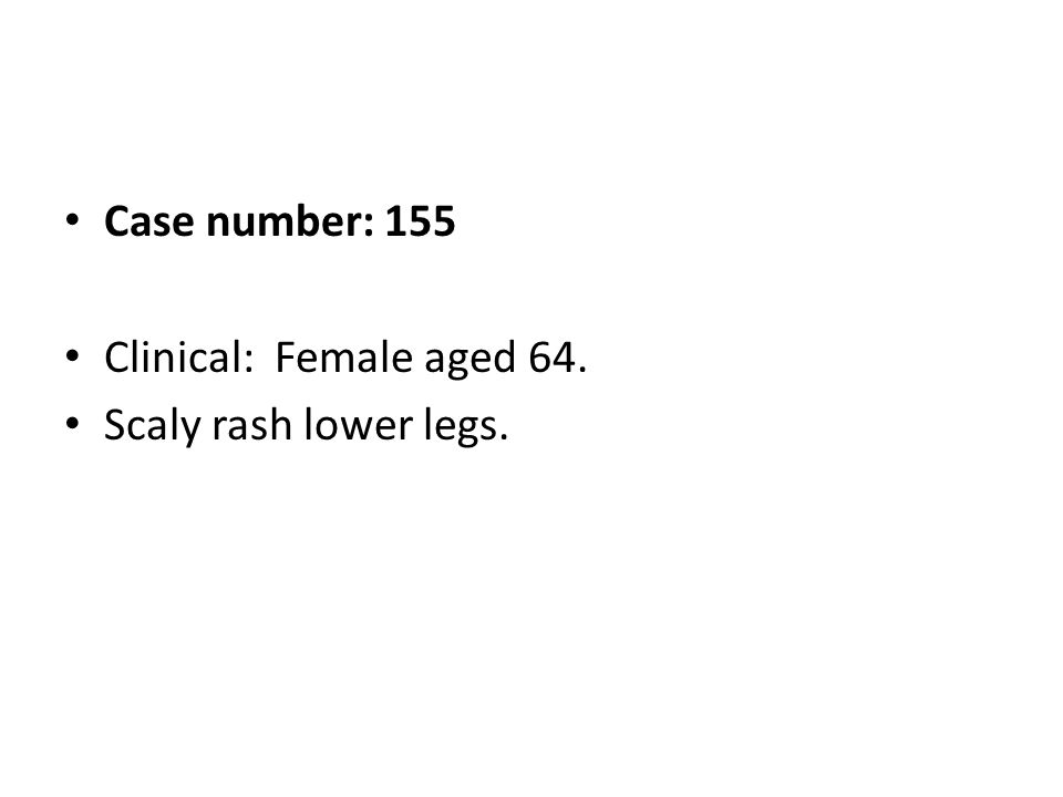 Case number: 155 Clinical: Female aged 64. Scaly rash lower legs.