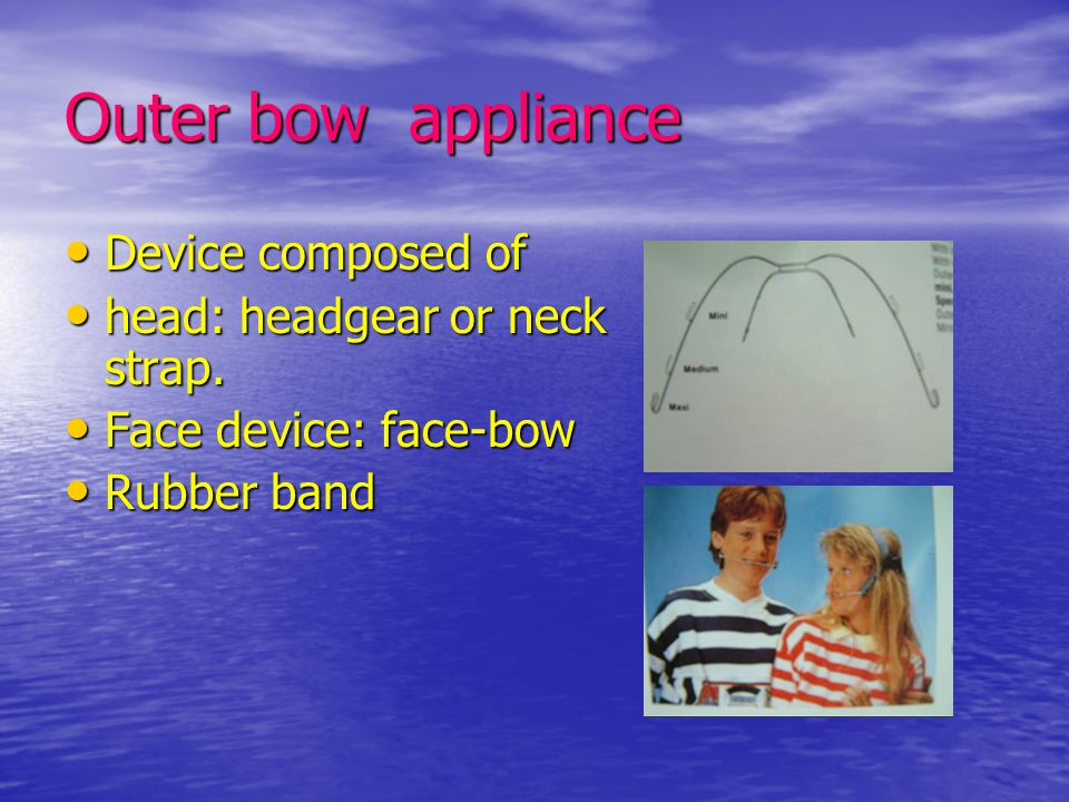 Outer bow appliance Device composed of Device composed of head: headgear or neck strap. head: headgear or neck strap. Face device: face-bow Face devic