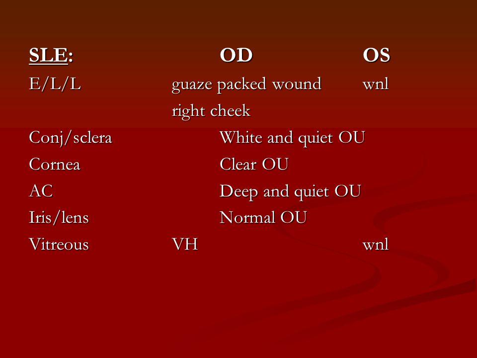 SLE: ODOS E/L/Lguaze packed woundwnl right cheek right cheek Conj/scleraWhite and quiet OU CorneaClear OU ACDeep and quiet OU Iris/lensNormal OU Vitre