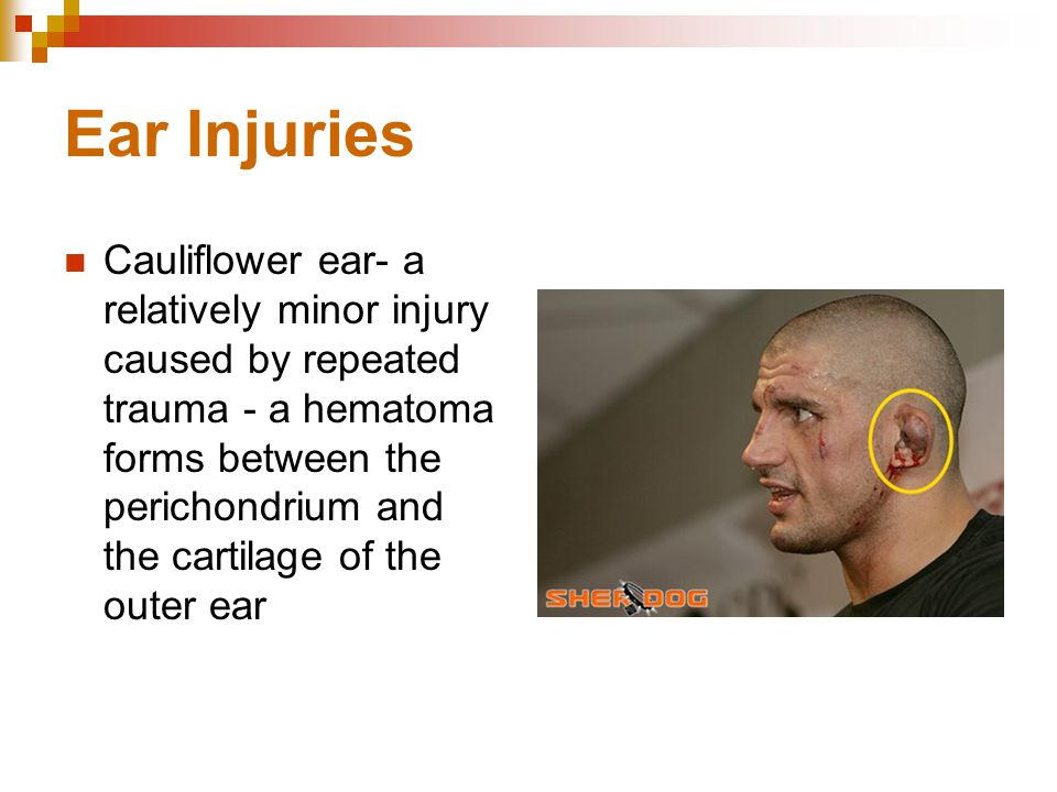 Ear Injuries Cauliflower ear- a relatively minor injury caused by repeated trauma - a hematoma forms between the perichondrium and the cartilage of the outer ear