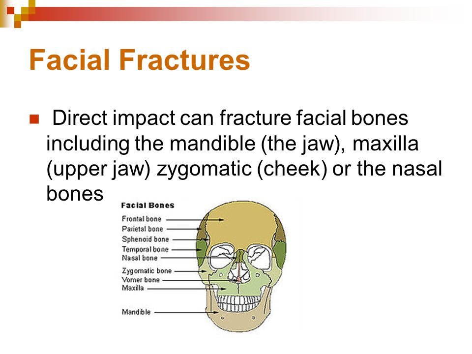Facial Fractures Direct impact can fracture facial bones including the mandible (the jaw), maxilla (upper jaw) zygomatic (cheek) or the nasal bones