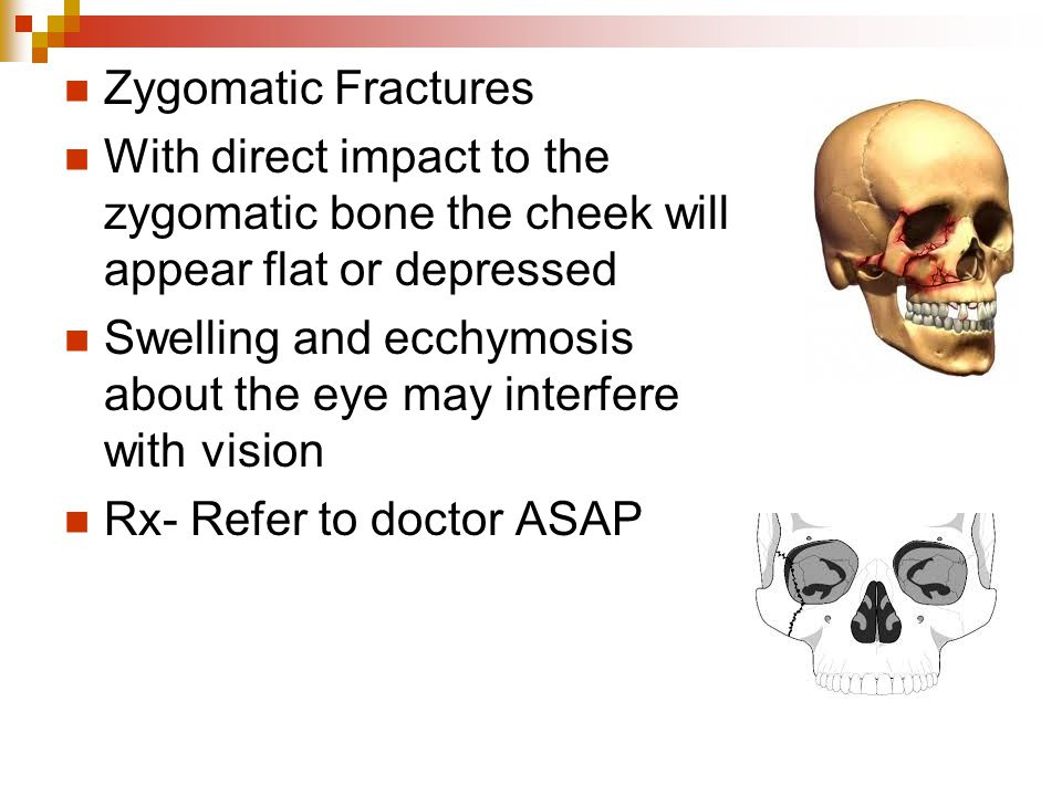 Zygomatic Fractures With direct impact to the zygomatic bone the cheek will appear flat or depressed Swelling and ecchymosis about the eye may interfere with vision Rx- Refer to doctor ASAP
