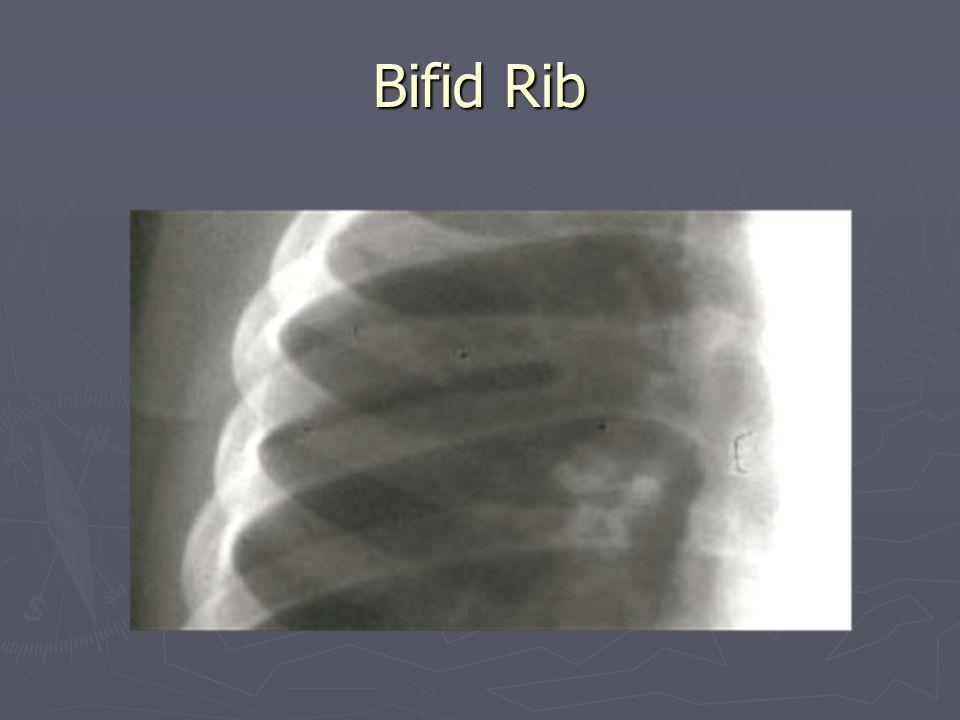Bifid Rib