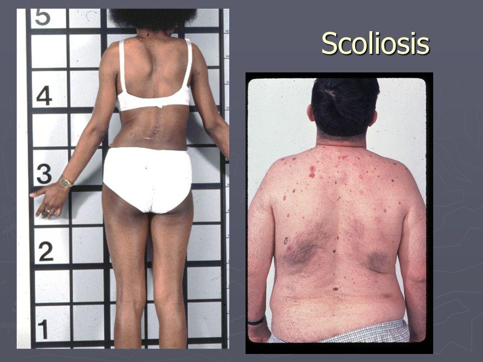 Scoliosis Scoliosis