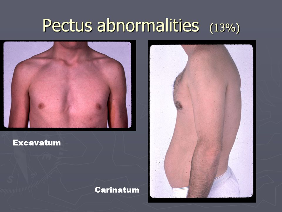 Pectus abnormalities (13%) Excavatum Carinatum