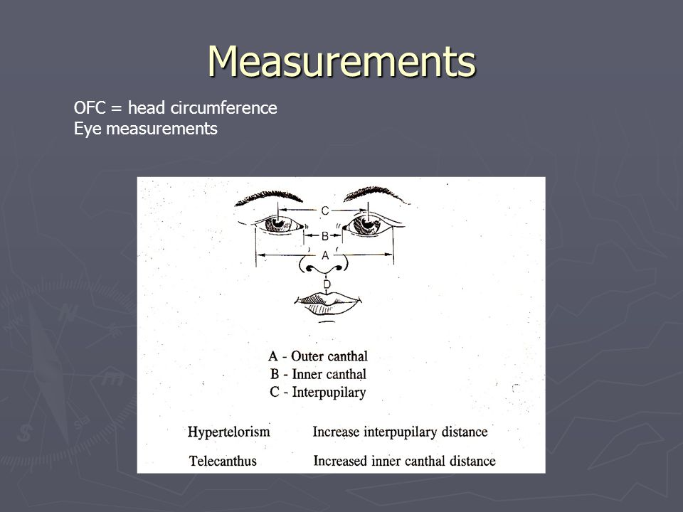 Measurements OFC = head circumference Eye measurements
