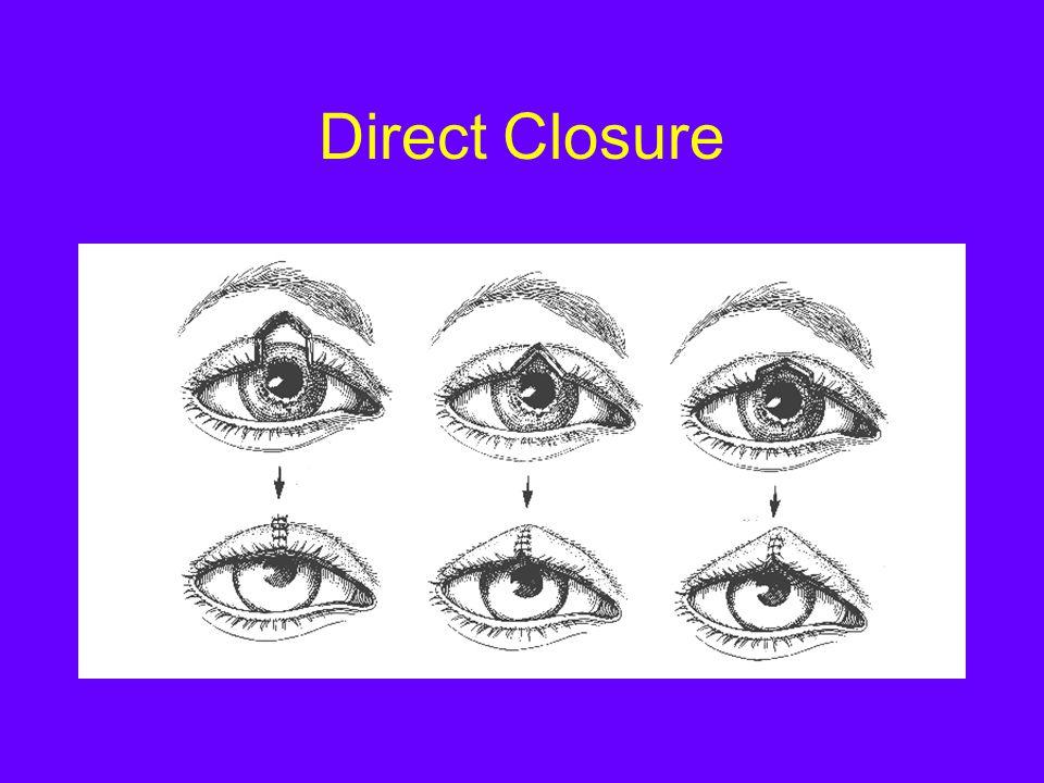 Direct Closure