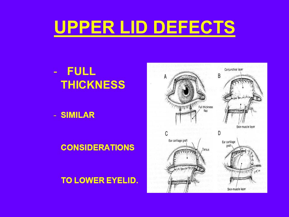 UPPER LID DEFECTS - FULL THICKNESS -SIMILAR CONSIDERATIONS TO LOWER EYELID.