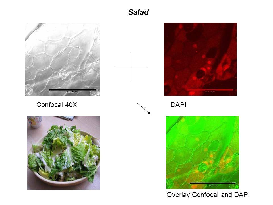 Salad Confocal 40XDAPI Overlay Confocal and DAPI