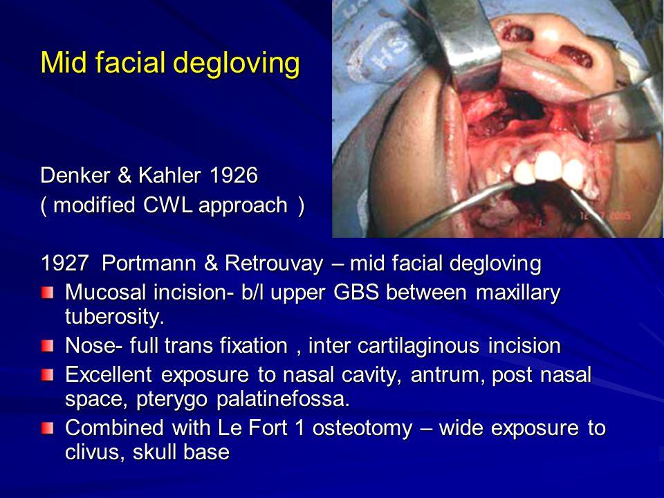 Mid facial degloving Denker & Kahler 1926 ( modified CWL approach ) 1927 Portmann & Retrouvay – mid facial degloving Mucosal incision- b/l upper GBS b