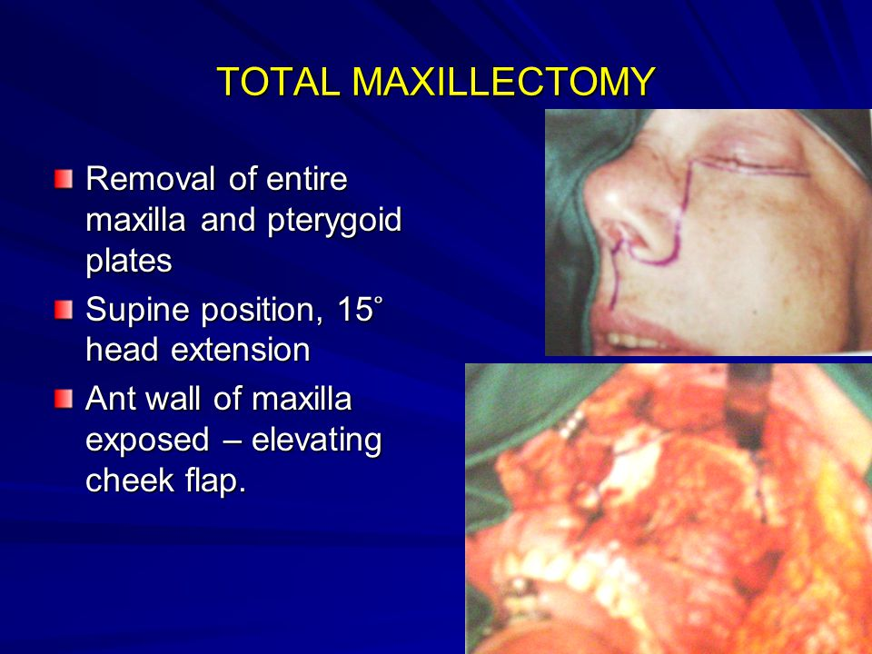TOTAL MAXILLECTOMY Removal of entire maxilla and pterygoid plates Supine position, 15 ̊ head extension Ant wall of maxilla exposed – elevating cheek f