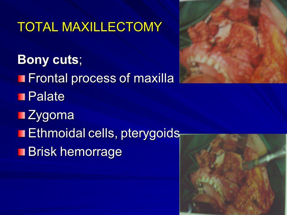 TOTAL MAXILLECTOMY Bony cuts; Frontal process of maxilla PalateZygoma Ethmoidal cells, pterygoids Brisk hemorrage