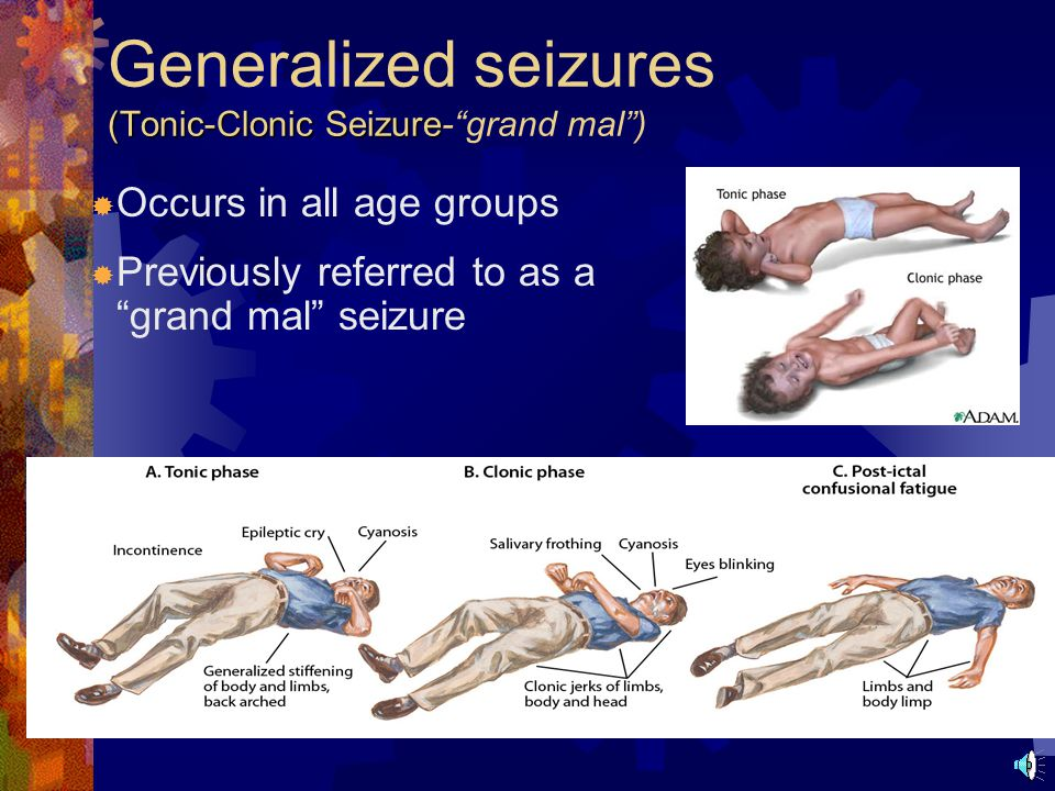 Partial seizures  Involve only part of the brain  Common types include simple partial and complex partial  Symptoms relate to the pat of the brain