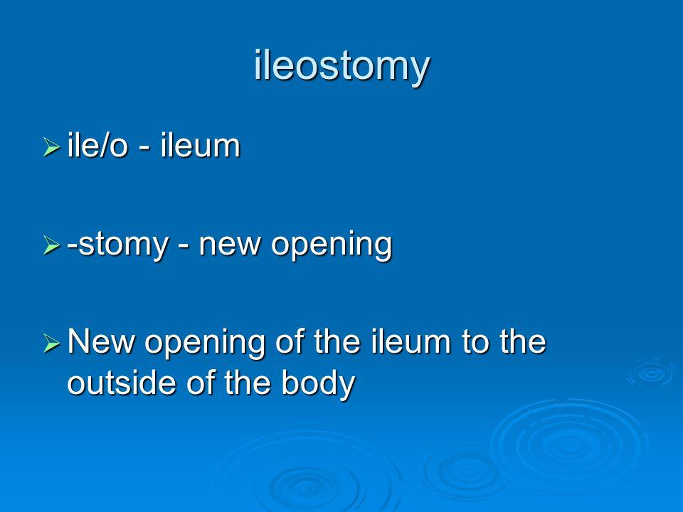 ileostomy  ile/o - ileum  -stomy- new opening  New opening of the ileum to the outside of the body