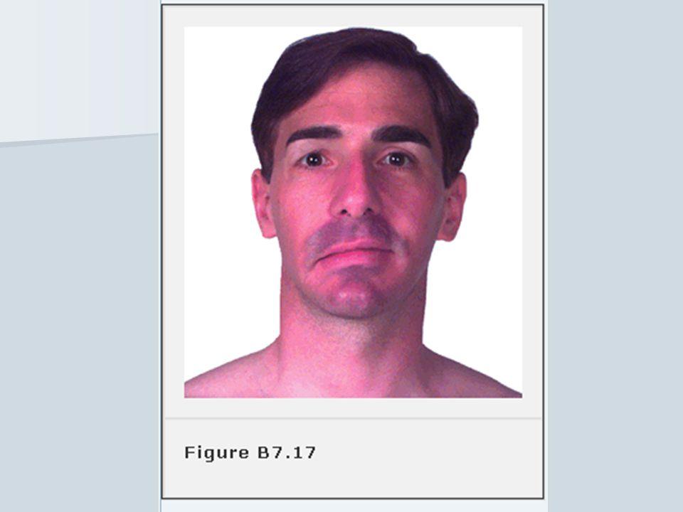 Injury to Branch of facial nerves 1- By stab wound- gunshots. 2- Injury at birth. 3- Injury of temporal bones. 4- Surgical approach to sub mandibular