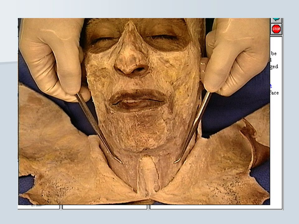 **On reflection the skin of the face, the following main structures are revealed: 1- muscles of facial expression 2- facial nerve 3- cutane. branches