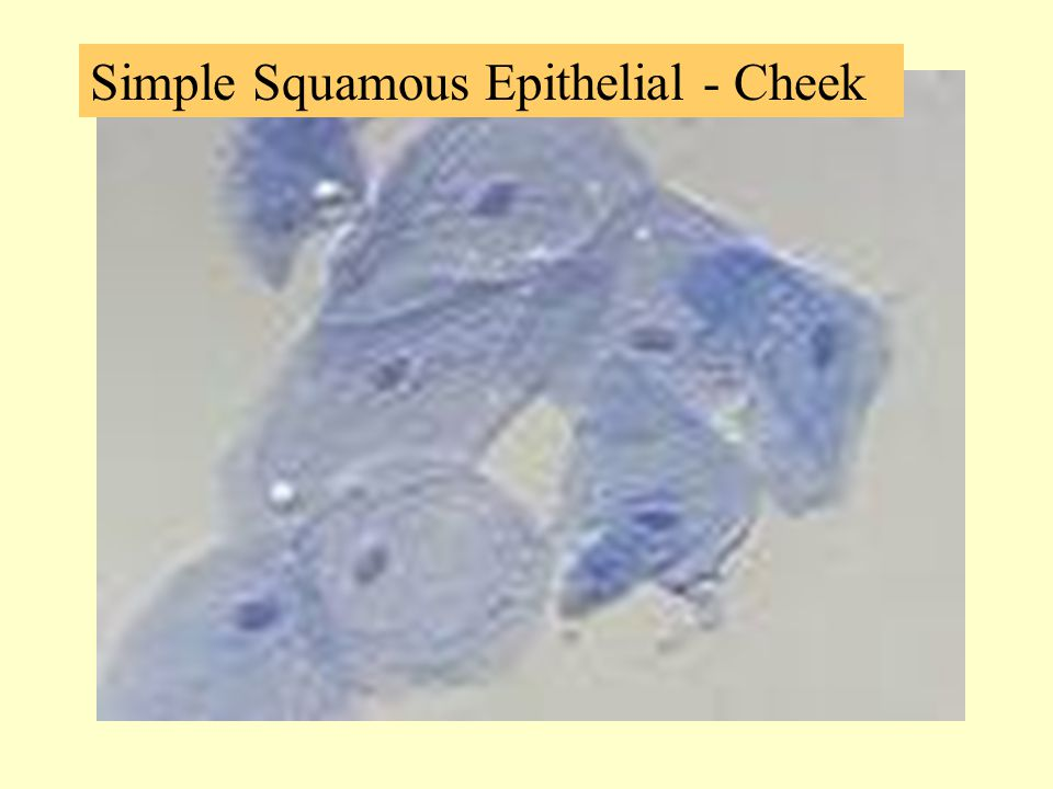 Simple Squamous Epithelial - Cheek