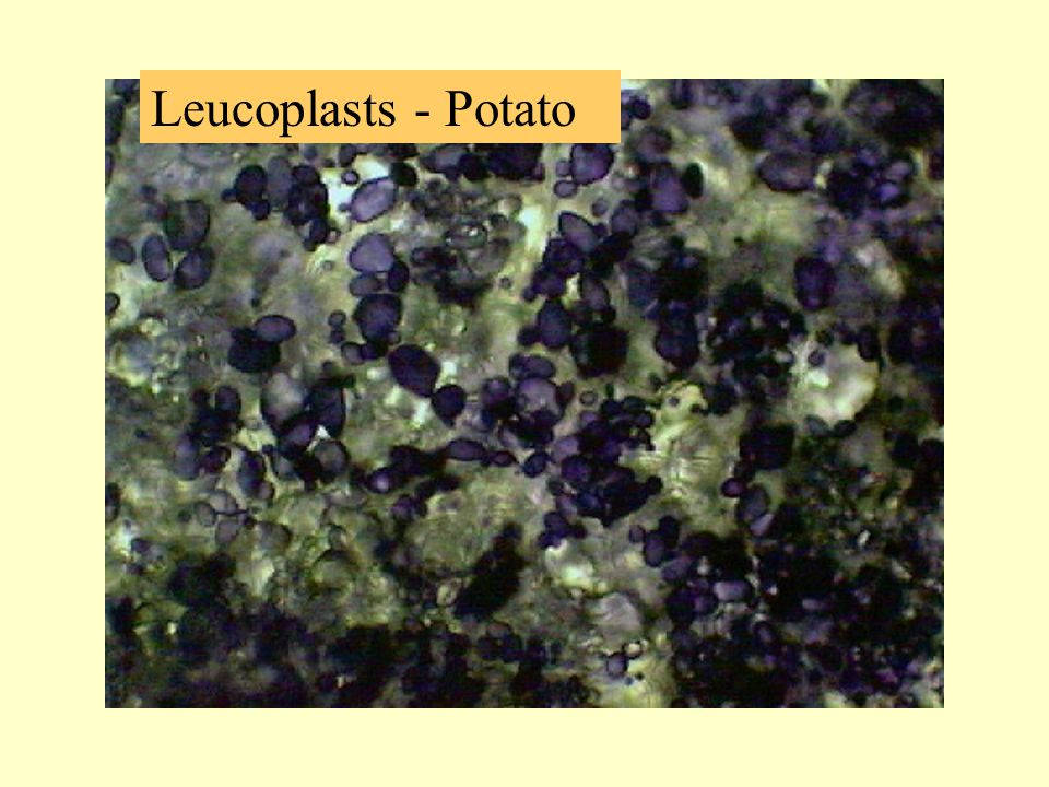 Leucoplasts - Potato