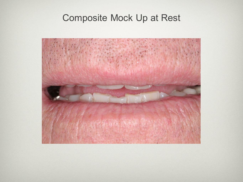 Composite Mock Up at Rest