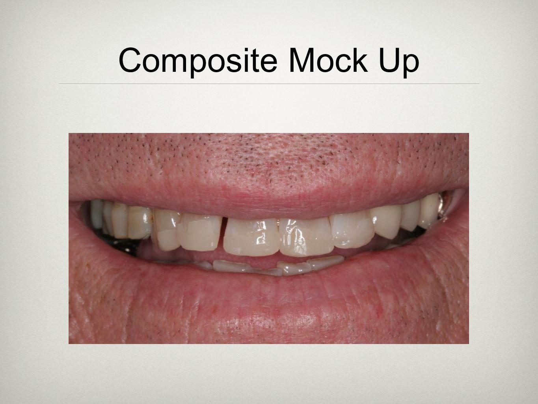 Composite Mock Up