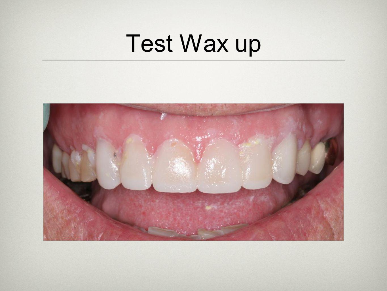 Test Wax up