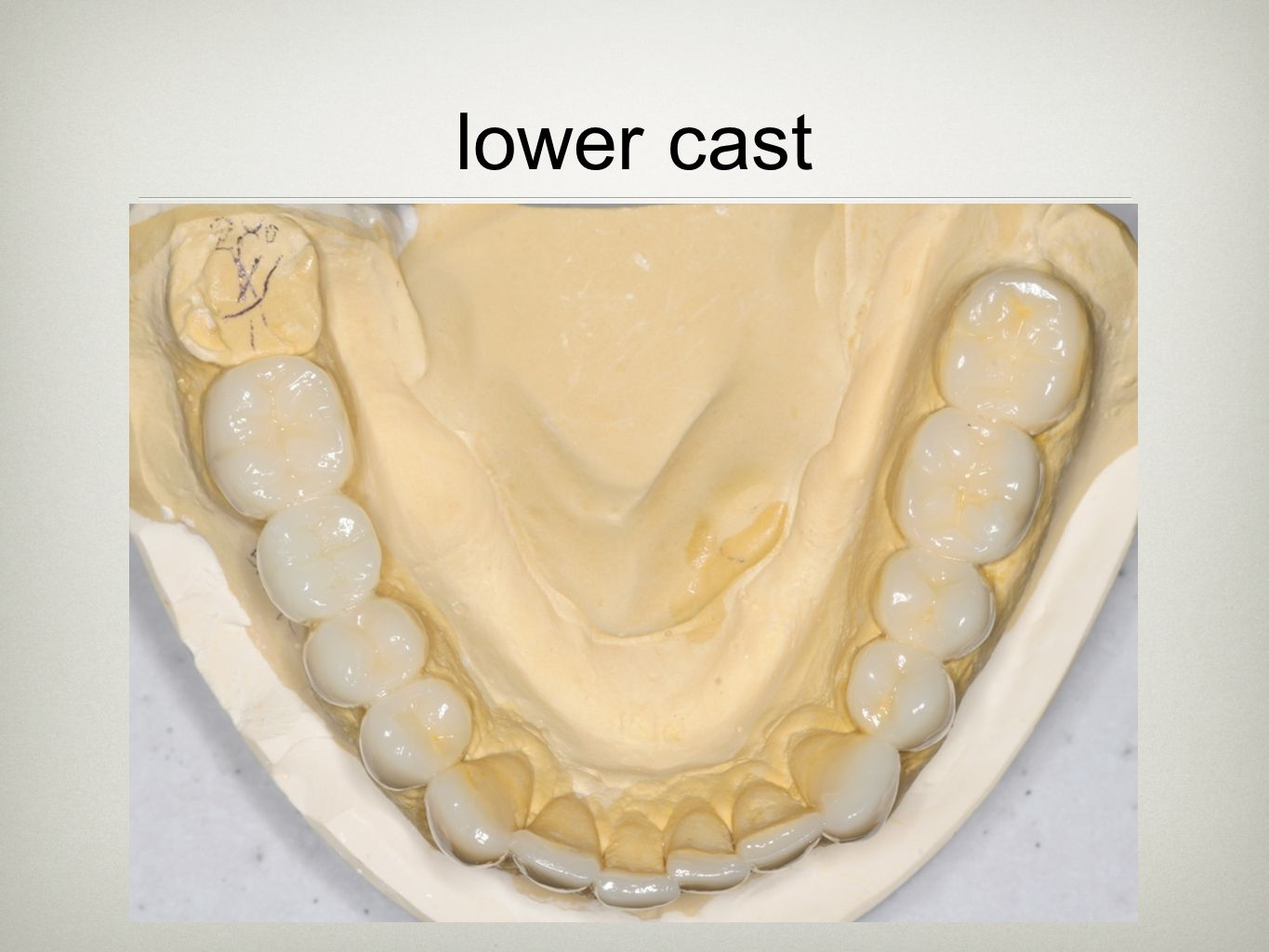 lower cast