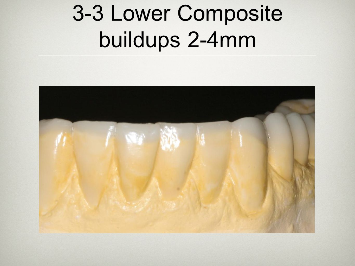 3-3 Lower Composite buildups 2-4mm