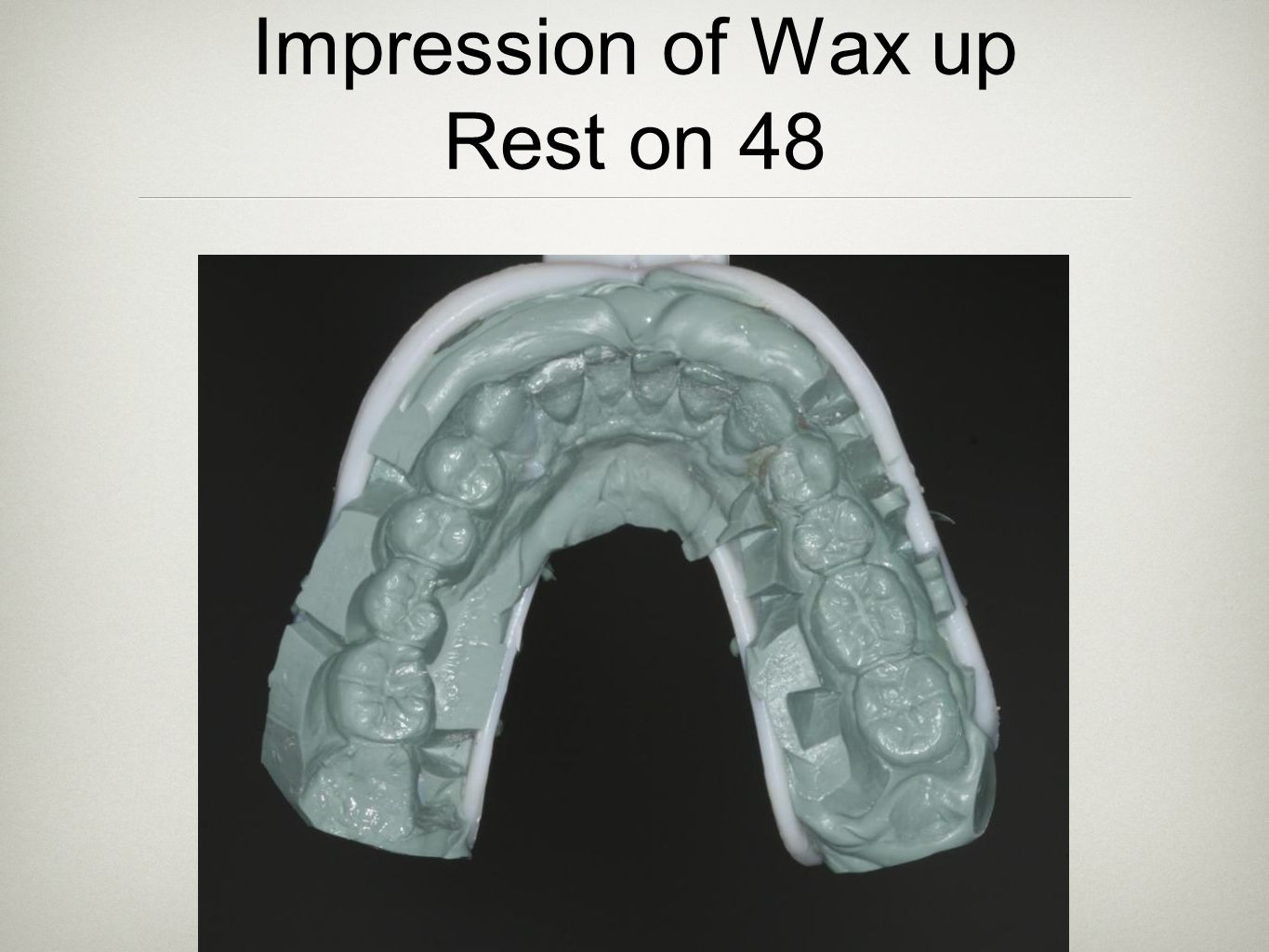 Impression of Wax up Rest on 48