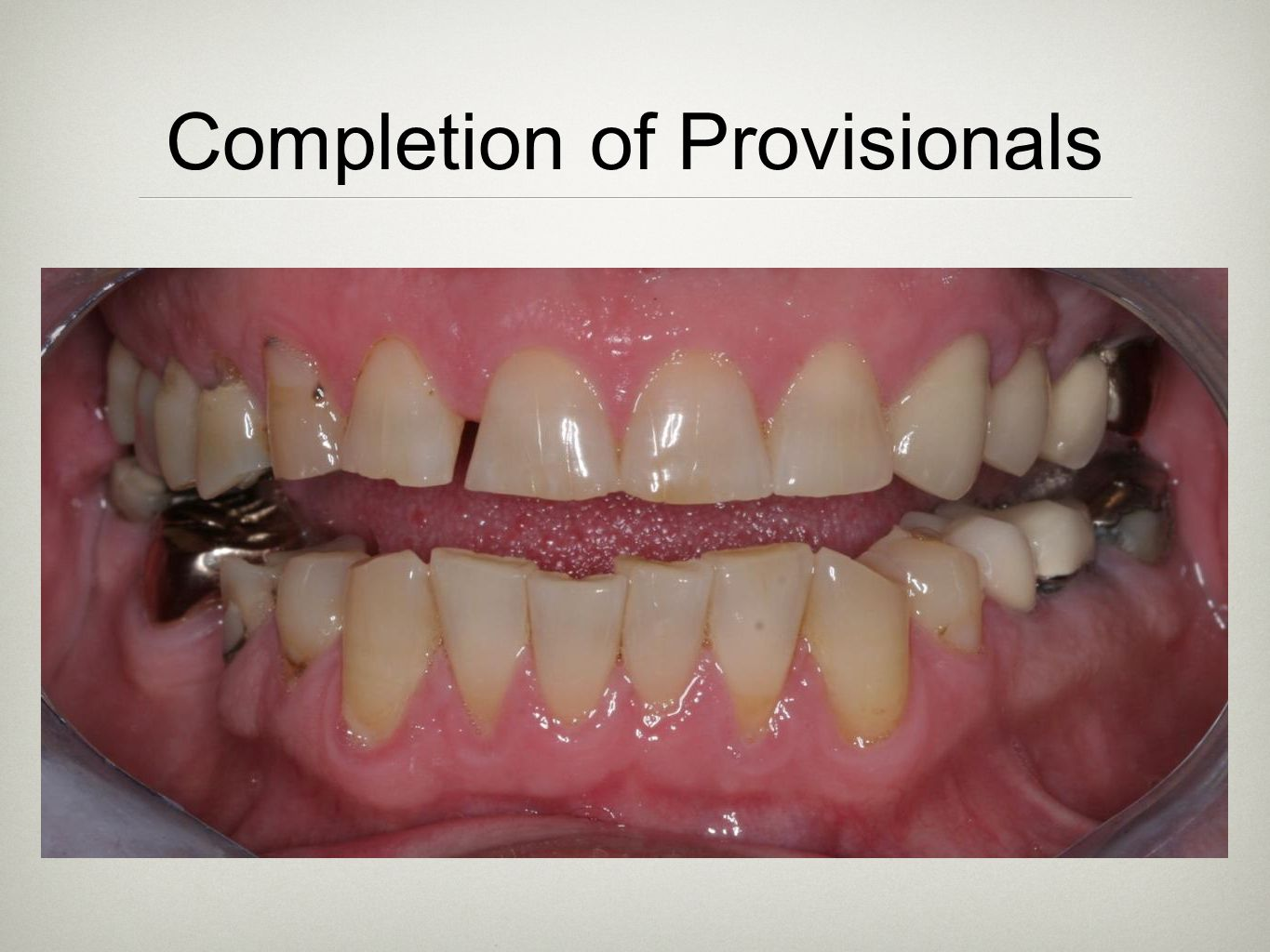 Completion of Provisionals