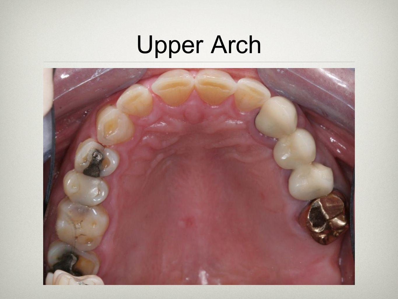 Upper Arch