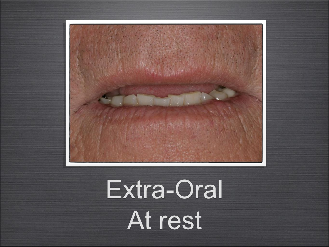 Extra-Oral At rest