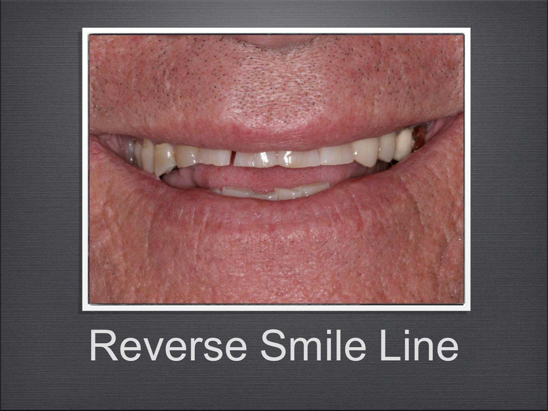 Reverse Smile Line