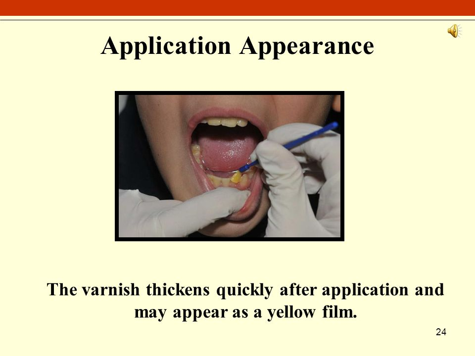 24 Application Appearance The varnish thickens quickly after application and may appear as a yellow film.