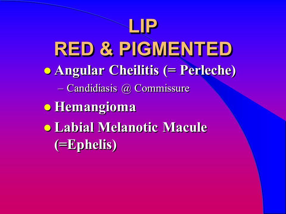 LIP RED & PIGMENTED l Angular Cheilitis (= Perleche) –Candidiasis @ Commissure l Hemangioma l Labial Melanotic Macule (=Ephelis) l Angular Cheilitis (= Perleche) –Candidiasis @ Commissure l Hemangioma l Labial Melanotic Macule (=Ephelis)