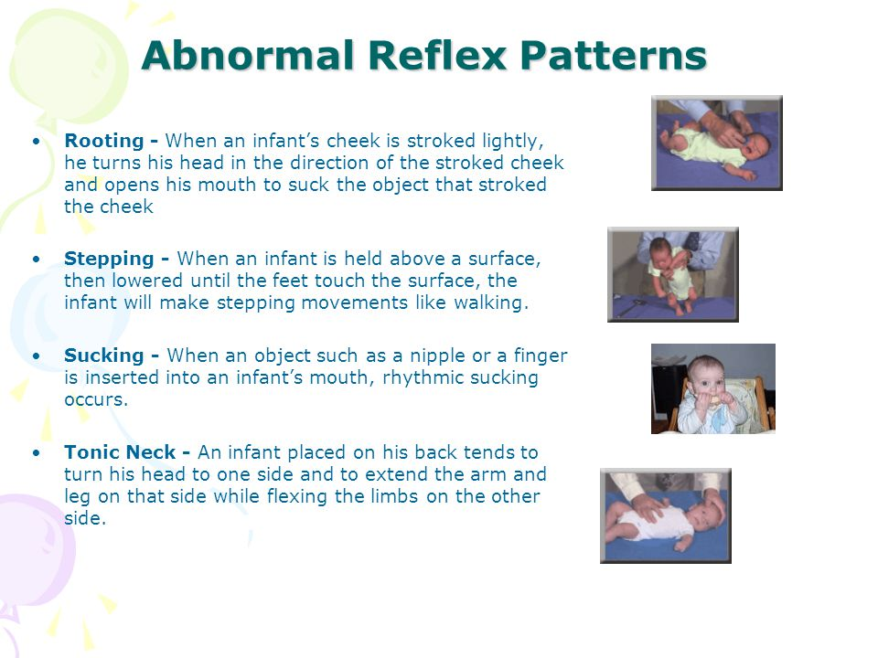 Abnormal Reflex Patterns Rooting - When an infant's cheek is stroked lightly, he turns his head in the direction of the stroked cheek and opens his mo