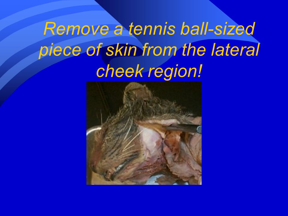 Remove a tennis ball-sized piece of skin from the lateral cheek region!