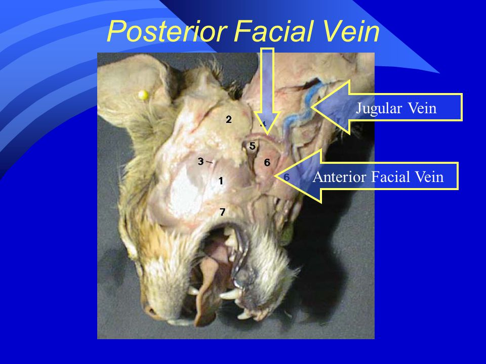 Posterior Facial Vein Anterior Facial Vein Jugular Vein
