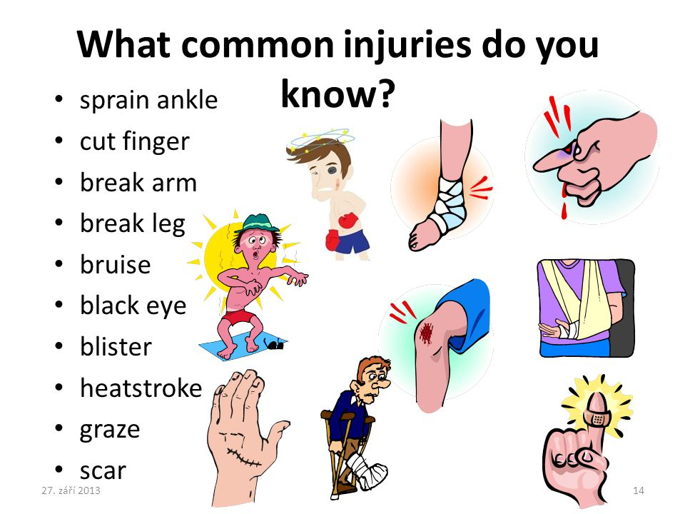 sprain ankle cut finger break arm break leg bruise black eye blister heatstroke graze scar What common injuries do you know.